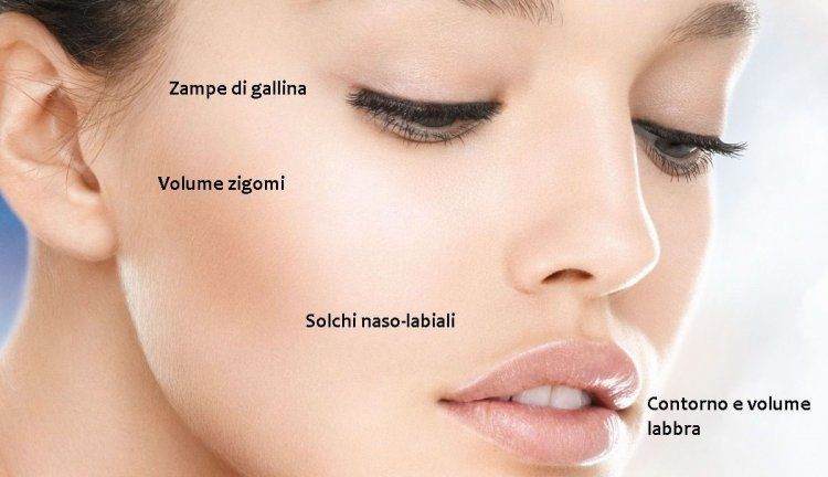 Filler con acido ialuronico